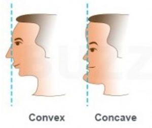 לסת קידמית או אחורית-יישור שיניים