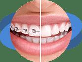 יישור שיניים אורתוגנטי