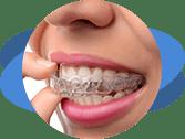 יישור שיניים בקשתיות שקופות (invisalign)