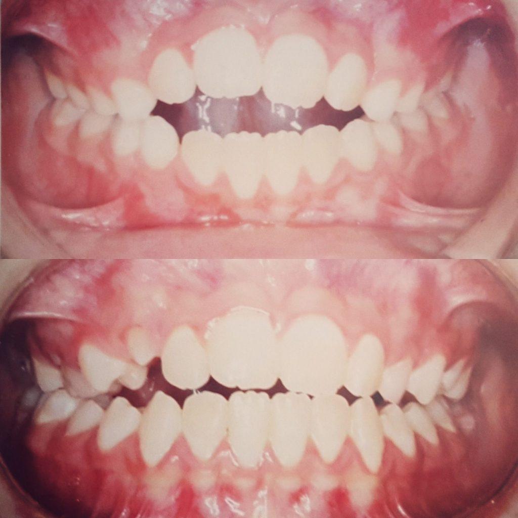 מנשך קדמי פתוח עקב הרגל דחיקת לשון