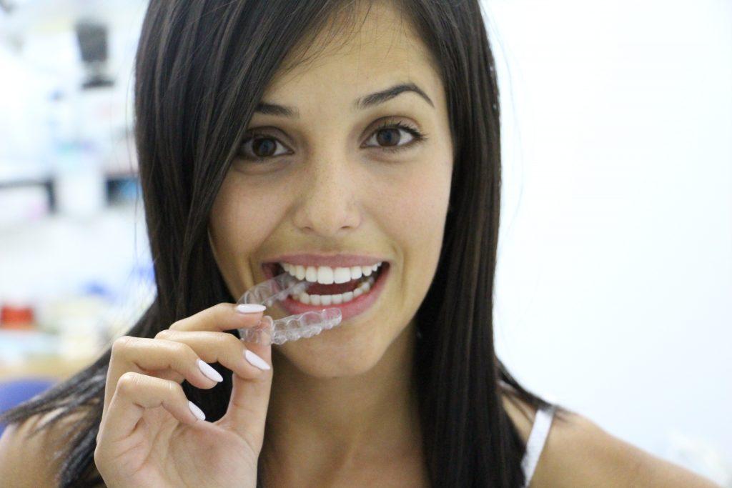 אינויזליין Invisalign – יישור שיניים בקשתיות שקופות